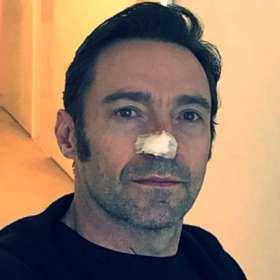 ¡NO ES DE ADAMANTIO! Hugh Jackman de nuevo con cáncer en la piel