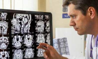 zigmaz-interesantes-y-recientes-estudios-cientificos-sobre-cerebro del mono